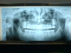 dental photo